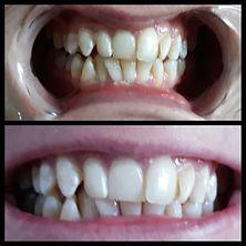 Beccas teeth.jpg