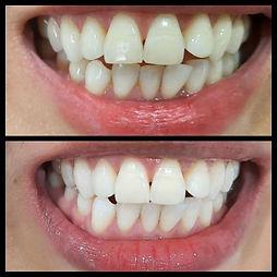 TeethJess.jpg