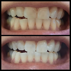 teeth 4.JPG