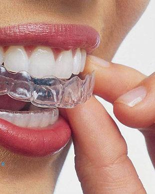 invisalign-mansfield-dentist.jpg