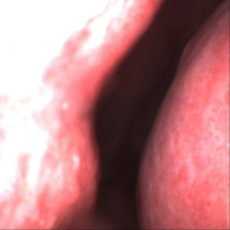 Blocked nose and nose unblocking treatment under local anaesthetic in clinic