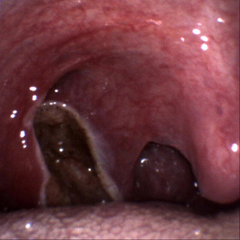 How it looks immediately after laser tonsillectomy under local anaesthetic spray