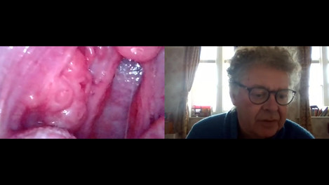Breakthrough!! Tonsil stone and tonsillitis? Remote Zoom consultation and examination. The future.