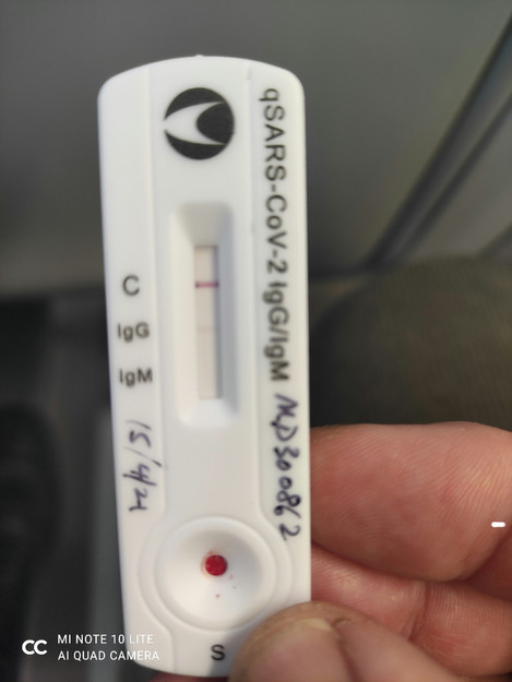 Lateral flow antibody test for covid19