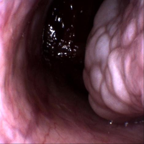 Mulberry Turbinate causes catarrh and postnasal drip