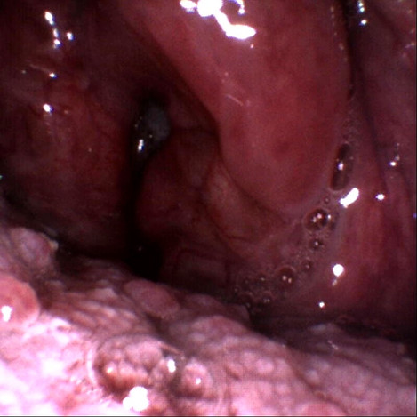 Very obstructed throat in a loud snorer