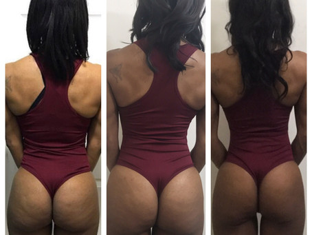 My glutes transformation update!