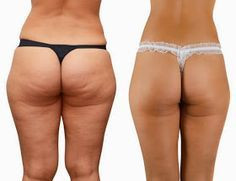 How to get smooth skin & RID of cellulite!?