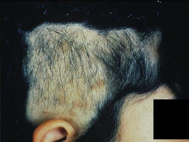 トリコチロマニア(抜毛癖)はどんな脱毛症ですか?下関 皮ふ科