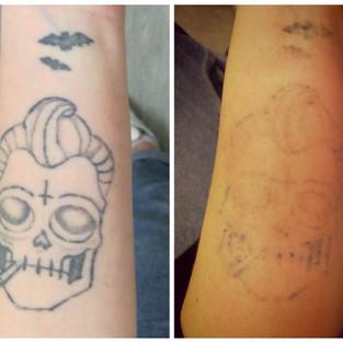 laser tattoo removal home job.jpg