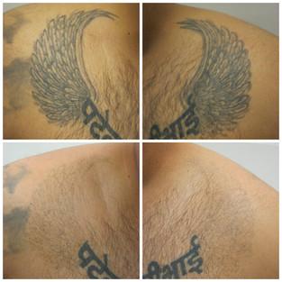 laser tattoo removal wings.jpg