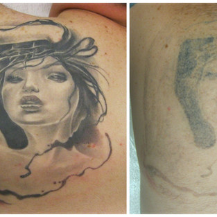 laser tattoo removal cover up.jpg