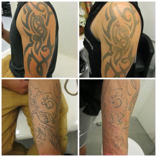 laser tattoo removal tribal.jpg