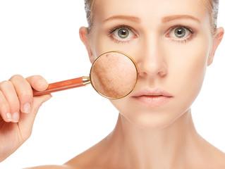 Skin Basics - Pigmentation