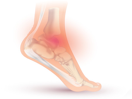 Ankle Sprains and Instability