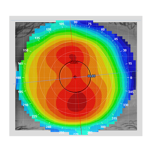 medmont corneal topography.png