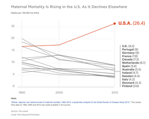 Maternal Mortality on the rise in the U.S.