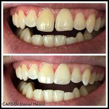 CAFD-Dr Daniel Heard-Cosmetic Dentistry