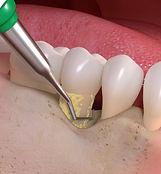 Periodontal treatment and maintenance at Daniel C Heard, DDS: Central Arkansas Family Dentistry