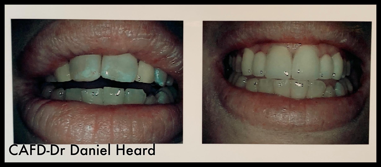 CAFD-Dr Daniel Heard-Veneers