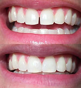 Cost effective Cosmetic Dentistry is a specialty of Daniel C Heard, DDS: Central Arkansas Family Dentistry