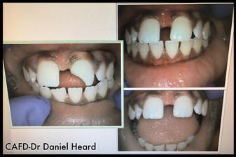 CAFD-Dr Daniel Heard-Bonding