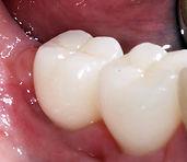 Beautiful crowns to restore weak or broken teeth at Daniel C Heard, DDS: Central Arkansas Family Dentistry