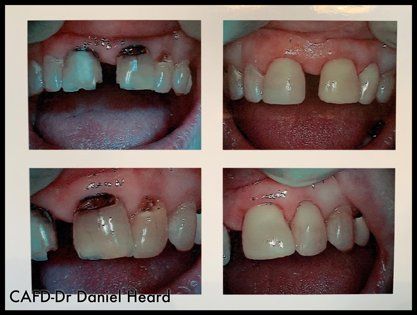 CAFD-Dr Daniel Heard-Fillings