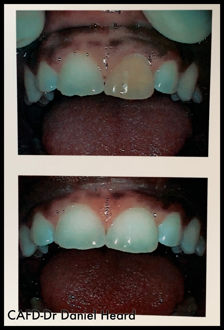 CAFD-Dr Daniel Heard-Internal Teeth Whitening