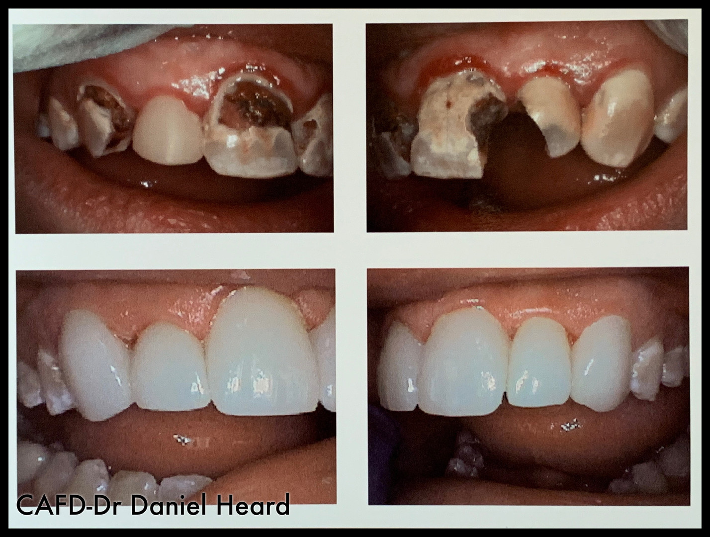 CAFD-Dr Daniel Heard-Crowns