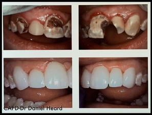 CAFD-Dr Daniel Heard-Crowns