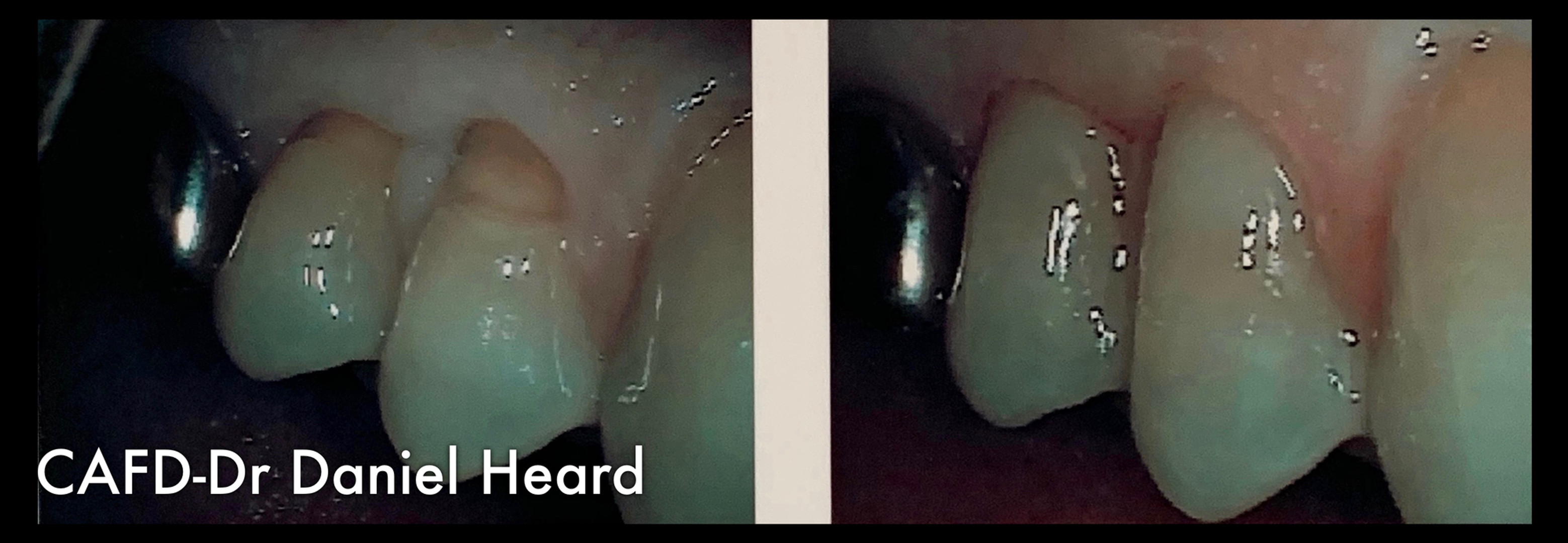 CAFD-Dr Daniel Heard-Abfraction Repair