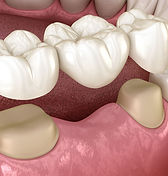 A bridge is a cost effective way to replace missing teeth restore proper chewing for patients at Daniel C Heard, DDS: Central Arkansas Family Dentistry