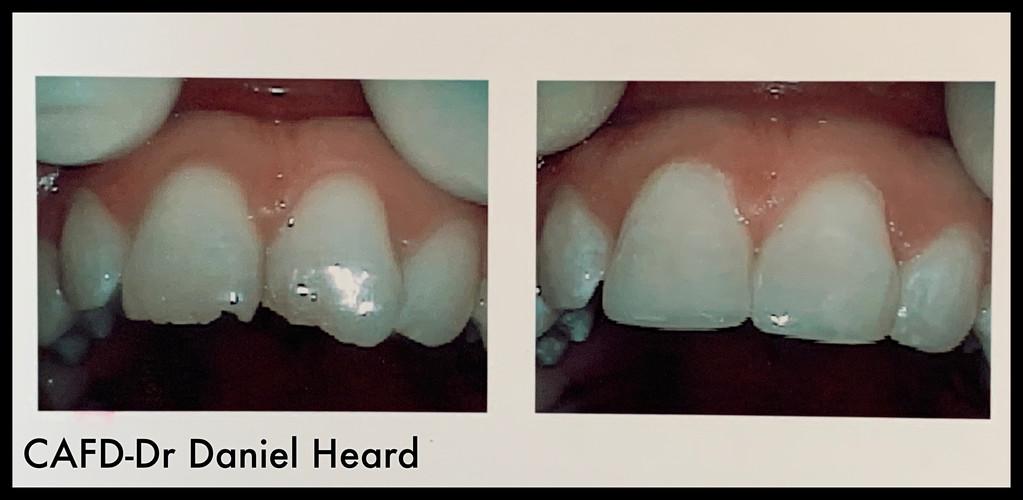 CAFD-Dr Daniel Heard-Chipped Teeth Repair