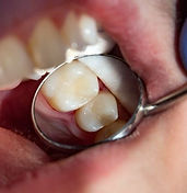 Composite, tooth colored fillings to restore teeth due to cavities and decay at Daniel C Heard, DDS: Central Arkansas Family Dentistry