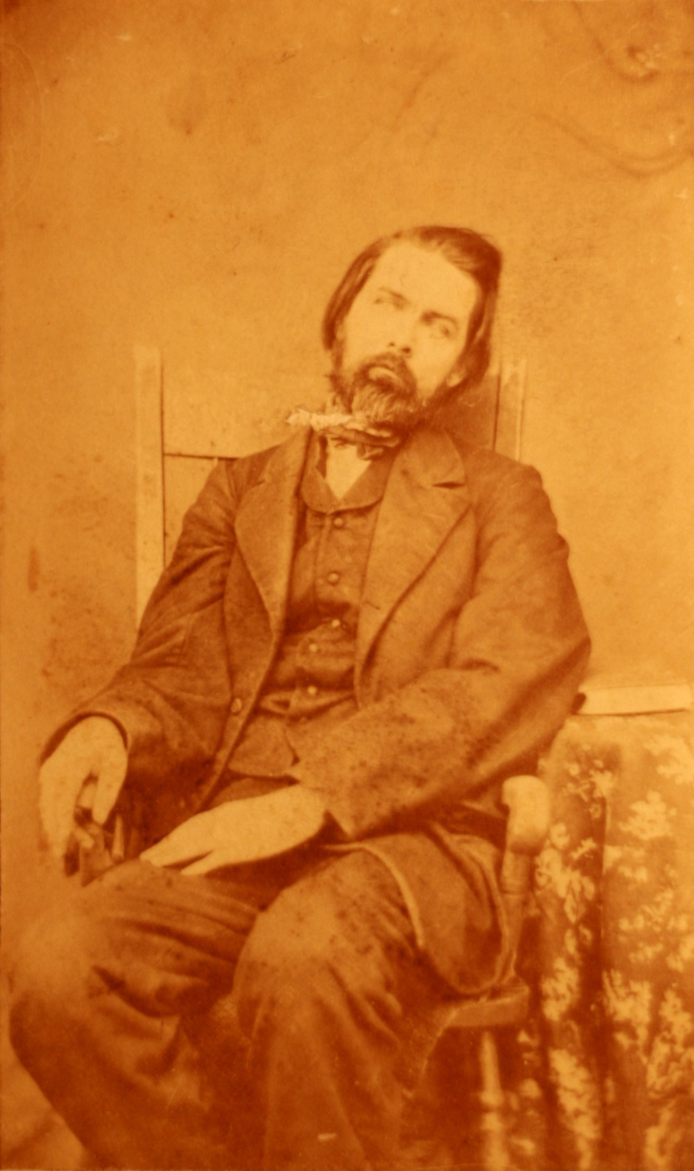 Photo courtesy of Wikimedia: https://commons.wikimedia.org/wiki/File%3APostmortem_man.jpg