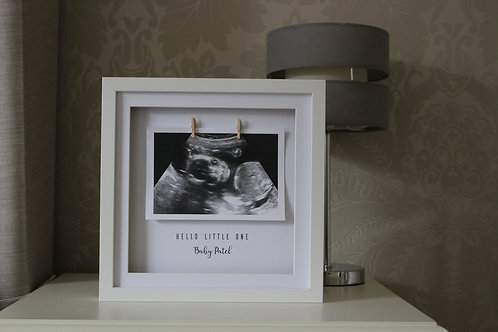 Personalised Scan Frame