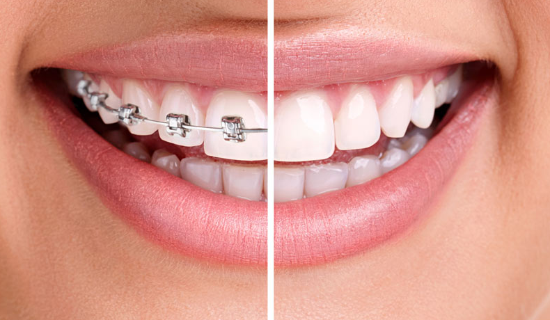 Traditional-Metal-Dental-Braces