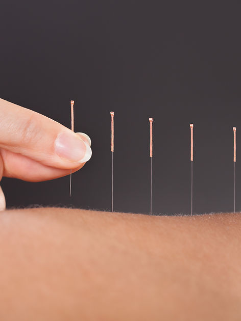 Lidder Therapies, Acupuncture, Hitchin