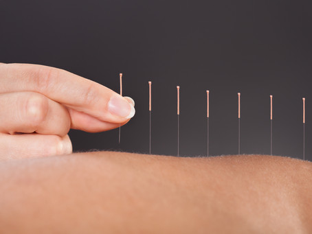Acupuncture Treatment - What to expect on your first visit