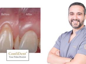 Gum Recession And Teeth Sensitivity
