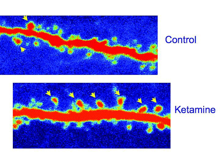 Ketamine increases synaptic connections between neurons.