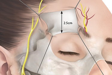 Craniotomy medical illustration