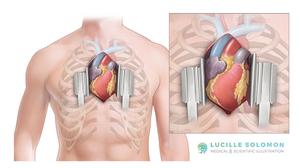 The median sternotomy