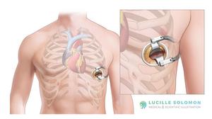 The mini-thoracotomy