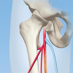 Medizinische Illustration Vascular surgery & angiology