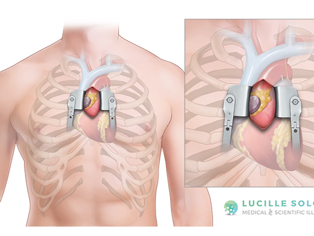 New Illustrations: Cardiac Surgery