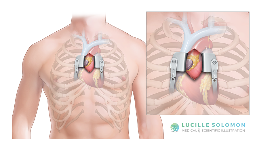 The mini upper sternotomy