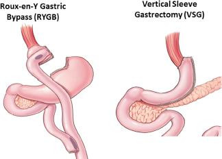 Why Gastric Bypass Surgery Cures Diabetes