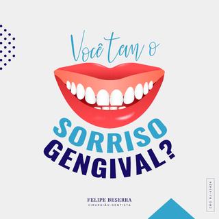 SORRISO-GENGIVEL.png